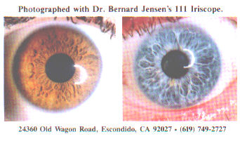 iris how to read iridology, toxic eyes